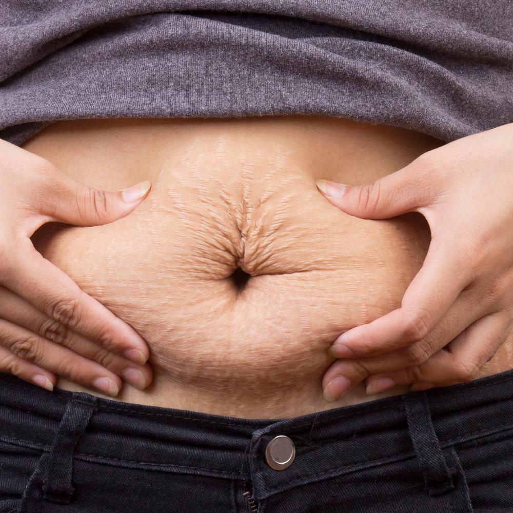 Como perder peso depois do parto